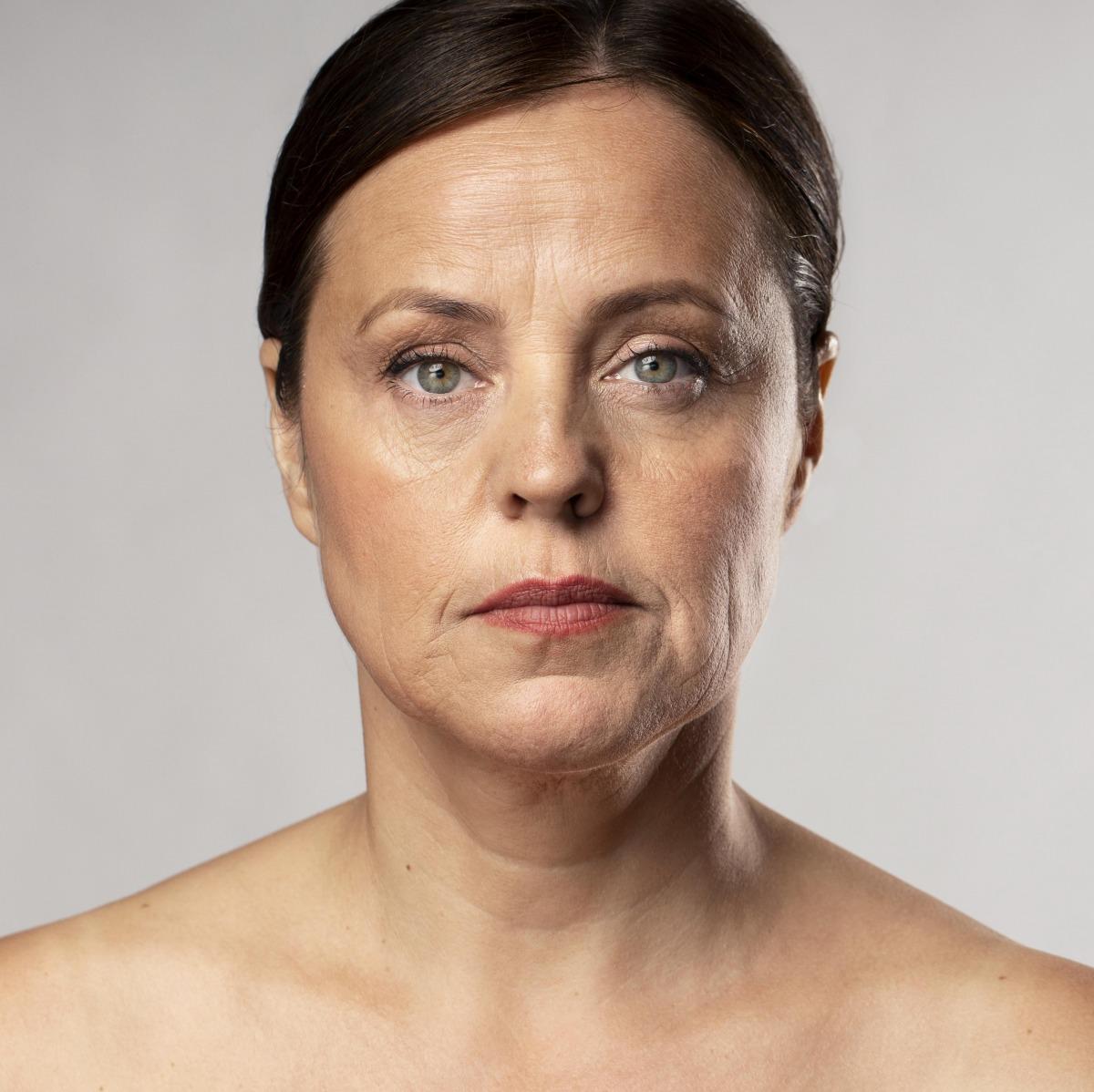 Bắt đầu hình thành những vết nhăn sạm dễ làm mất thẩm mỹ khi bước đến độ tuổi 30